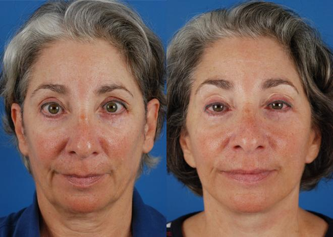 The UpLift™ before and after photos in Naples, FL, Patient 8794